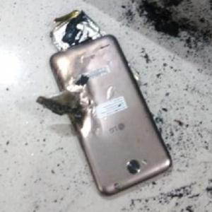 أصيبت بجروح بالغة.. انفجار هاتف محمول في يد فتاة أثناء اللعب عليه