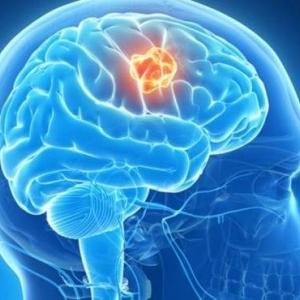 14 حيلة يخدعنا بها الدماغ لنرى العالم بصورة خاطئة.. تعرف عليها