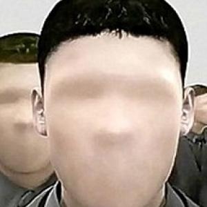 أصيبت به سيدة ونست أطفالها.. تعرف على مرض عمى الوجه وأعراضه