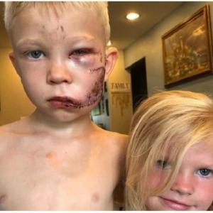 دفاعا عن حياة شقيقته الصغرى.. طفل يتلقى 90 غرزة في وجهه بسبب كلب