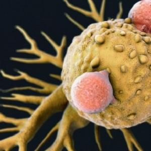 عمره 120 ألف سنة.. عفن قديم ربما يصبح علاجا للسرطان