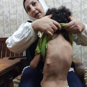 «جسمه بيتحول لعضم لو اتخبط».. متلازمة «الرجل الصخرة» تحرم «محمد» من طفولته