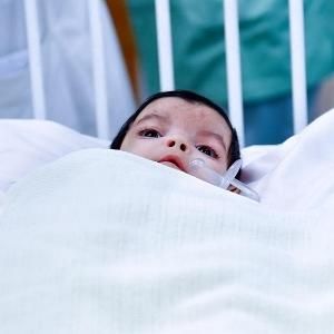 جراحة عاجلة لـ التوأم الطفيلي اليمني بمشاركة 25 طبيبا: طفلة بـ4 سيقان