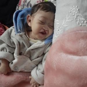معاناة «مودة» بدأت قبل ولادتها: مصابة بـ5 أمراض أخطرها «مخ غير مكتمل»