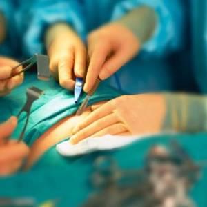 """يابانية تعاني من انتفاخ لمدة 6 سنوات بسبب """"اسفنجة جراحية"""""""