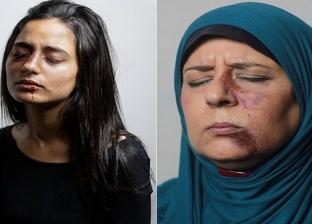 جلسة تصوير لمناهضة العنف ضد المرأة: حقك على راسى