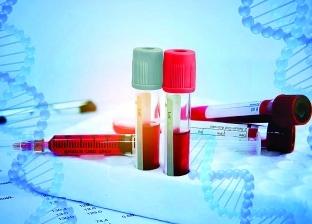 علماء يطورون اختبار للدم يمكن أن يتنبأ باقتراب وفاة الشخص
