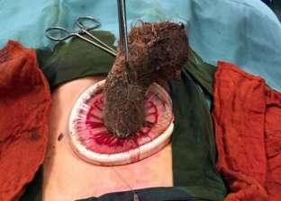 """من بينها """"شعر بحجم معدة"""".. أغرب 5 أشياء وجدها الجراحون في أجساد المرضى"""