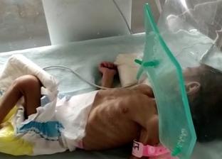 صور.. نجاة طفلة رضيعة من الموت بعد دفنها حية في الهند