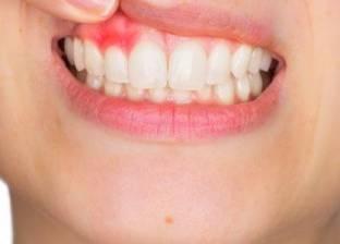 """""""الشاي وأوراق الجوافة"""".. هكذا تعالج التهاب اللثة ومشاكل الأسنان"""