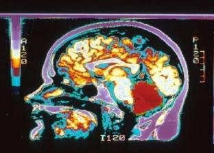 دراسة جديدة تكشف أوجه الاختلاف بين دماغ الرجل والمرأة