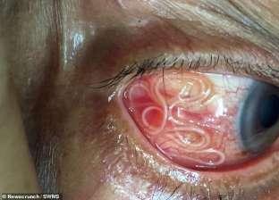 بالصور| أطباء ينجحون في إخراج دودة طولها 15 سنتيمترا من عين هندي