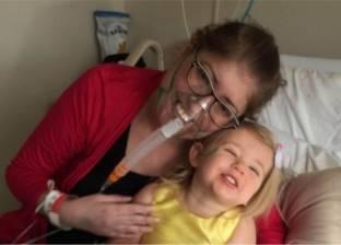 إنقاذ حياة سيدة بانتزاع رئتيها لستة أيام