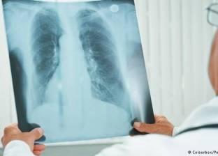 أبرز المعلومات عن مرض الالتهاب الرئوي