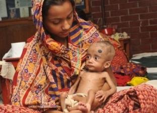 دراسة: الموز والفول السوداني والحمص لعلاج سوء التغذية