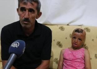 """طفلة سورية تخضع لـ93 عملية جراحية بسبب """"قنبلة"""""""