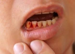 """نزيف اللثة.. هكذا تتغلب على رائحة الفم الكريهة والشعور بـ""""طعم الدم"""""""