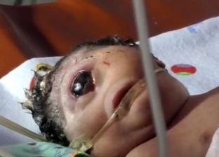 """ولادة طفلة إندونيسية ضخمة بـ""""عين واحدة"""""""
