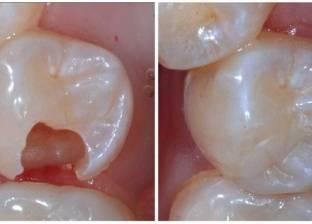 """""""وداعا للحشو"""".. علماء يبتكرون علاج فريد سيغير عالم طب الأسنان"""