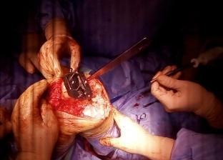 إجراء ثالث عملية تغيير مفصل كامل بمستشفى الزقازيق ضمن قوائم الانتظار