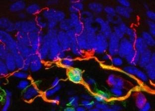 داخل الجلد.. اكتشاف عضو جديد في جسم الإنسان