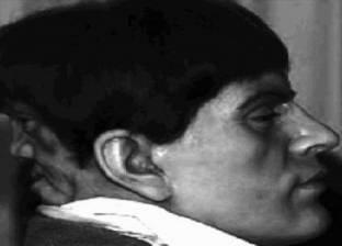 """""""إدوارد موردكي"""".. الرجل الذي عاش 23 عاما بـ """"وجه الشيطان"""""""