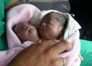 """ولادة طفل برأسين في سوريا.. ومتابعون: """"حالة نادرة الحدوث"""""""