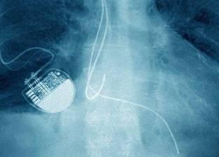 تقارير: الهاكرز قادرون على قتل مرضى القلب