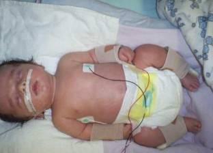 بالصور| مرض نادر يعرض طفلا في السادسة لـ500 كسر بالعظام
