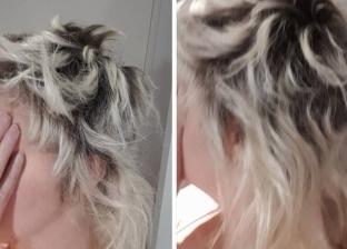 """""""أرادت شعرا ثلجيا فأصبحت صلعاء"""".. أسترالية تطالب بتعويض بعد سقوط شعرها"""