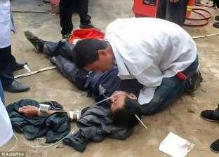 بالصور| عامل ينجو من الموت بعد اختراق رمح حديدي جمجمته