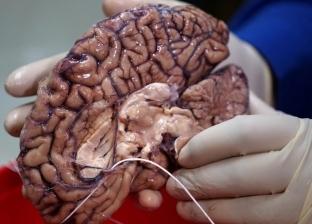 قيادة السيارات والعمل في الفضاء.. مهن تقلص حجم الدماغ