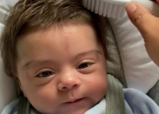ولادة طفل بشعر «بني» كثيف: حالة نادرة لرضيع بين كل 50 ألفا