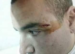 """""""أسنان المنوفية"""" تدين اعتداء أمين شرطة على طبيب قرية مؤنسة"""