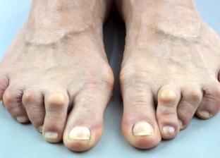 أصابع القدم تساعد في التعرف على الكشف عن الإصابة بالسرطان