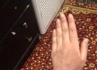 «نورا» اكتشفت إصابتها بكورونا صدفة على «فيس بوك»: ظهر عليها عرض نادر