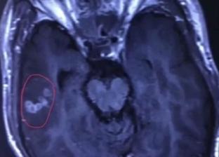 إزالة دودة شريطية تسبح في مخ رجل صيني أصابته بالصرع