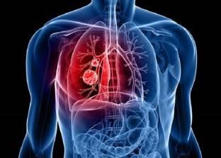 """احذر تلك الأطعمة.. تساعد على الإصابة بـ""""سرطان الرئة"""""""