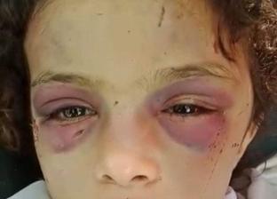 """""""التضامن"""" أنقذتها.. حكاية """"طفلة بلبيس"""" ضحية التعذيب على يد خالتها"""