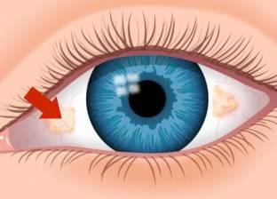 5 نصائح لمواجهة حساسية العين.. تعرف عليها