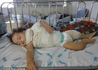 علبة صمغ تصيب طفلا بحروق كيميائية من الدرجة الثالثة بالبرازيل