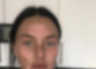«كادت تفقد بصرها».. سيدة تصاب بحروق بالغة بسبب البيض «صور»