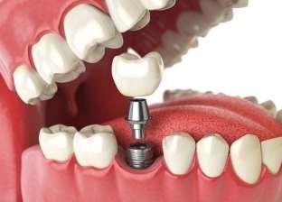 زراعة الأسنان.. الأهمية والتوقيت