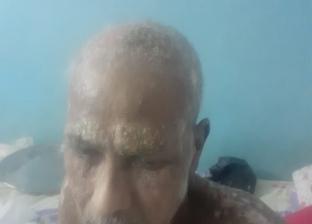 سرطان الجلد «ينهش» جسد «عبدالحميد»: صرفنا كل اللي معانا ومفيش نتيجة