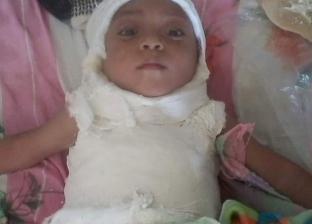 مصابة بمرض نادر.. إنقاذ طفلة من الشلل الرباعي في أسيوط