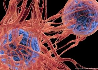 4 أطعمة تقي من الإصابة بالسرطان منها البطاطا والعدس