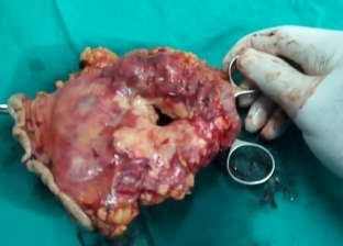 إجراء عملية استئصال ورم منفجر بمعدة مريض في مستشفى أشمون العام