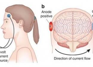 عادل مرعي يكشف أحدث طرق علاج الأمراض النفسية والعصبية بجهاز rtms