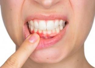 أسباب حدوث التهاب اللثة وطرق علاجها