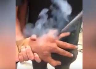 """بالفيديو  """"انفصال الحديد والنار"""".. نيوزلندي يكوي مكان خاتم زواجه"""